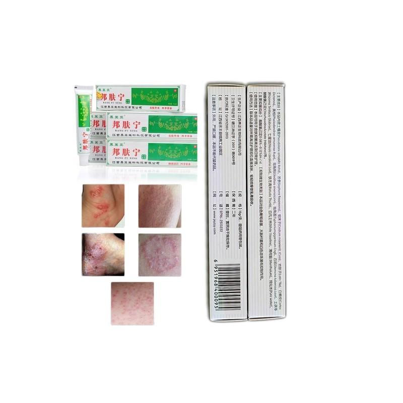 kenőcs ekcéma dermatitis psoriasis vörös folt viszket a száj közelében
